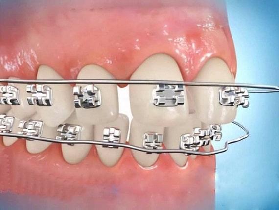 Niềng răng thưa có phải nhổ răng không?