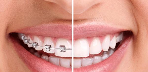 So sánh niềng răng mắc cài và niềng răng invisalign