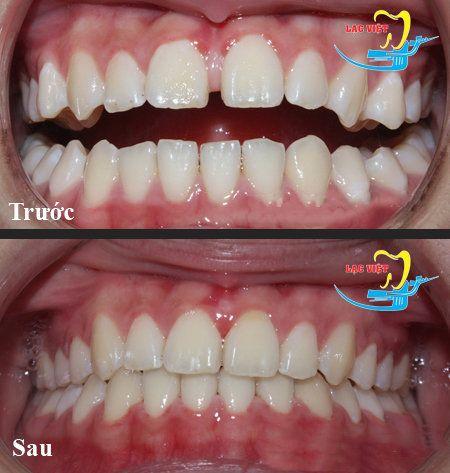 Có thể tự chữa răng thưa tại nhà không?