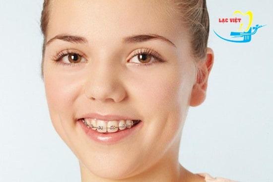 Các phương pháp chỉnh răng thưa hiệu quả nhất