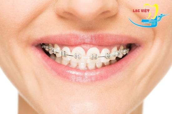 Niềng răng mắc cài kim loại có đau không?