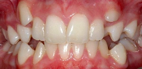 Răng mọc lệch phải làm sao?