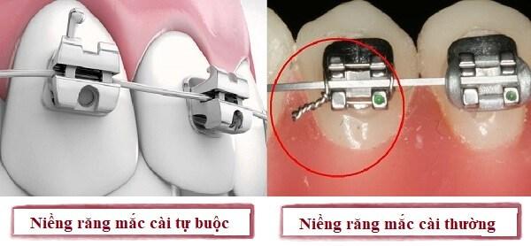 So sánh niềng răng mắc cài tự đóng và mắc cài thường